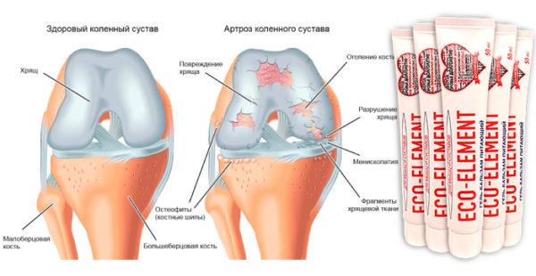 Набор из 5 гелей-бальзамов для мышц и суставов